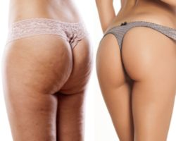 fight with cellulite